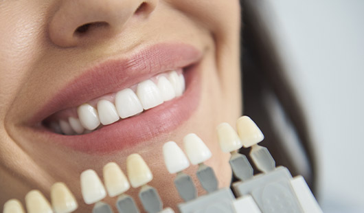 scale and polish, tooth whitening, Jersey, St Helier