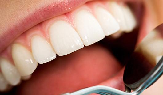 tooth extraction and root fillings, dentist in St Helier, Jersey